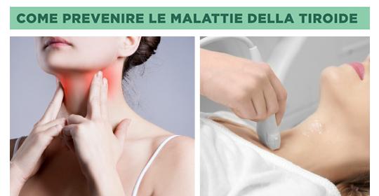 Come prevenire le malattie della Tiroide